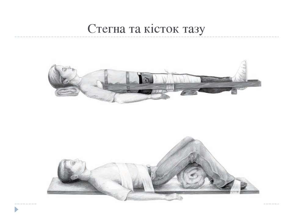 Стегна та кісток тазу