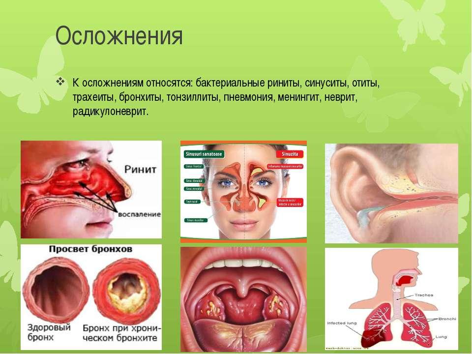 Осложнения К осложнениям относятся: бактериальные риниты, синуситы, отиты, тр...