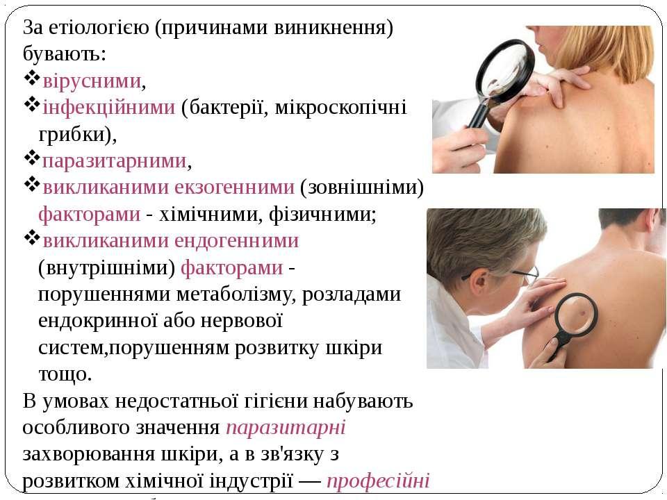 За етіологією (причинами виникнення) бувають: вірусними, інфекційними (бактер...