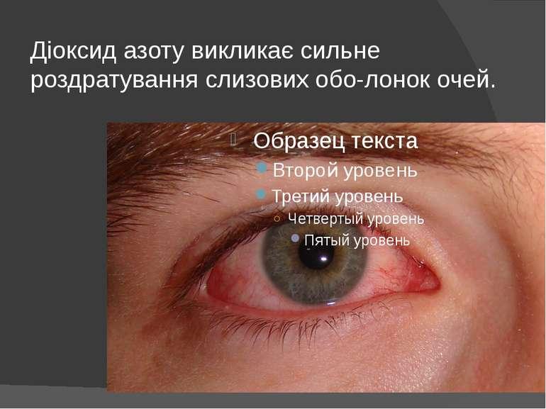 Діоксид азоту викликає сильне роздратування слизових обо лонок очей.
