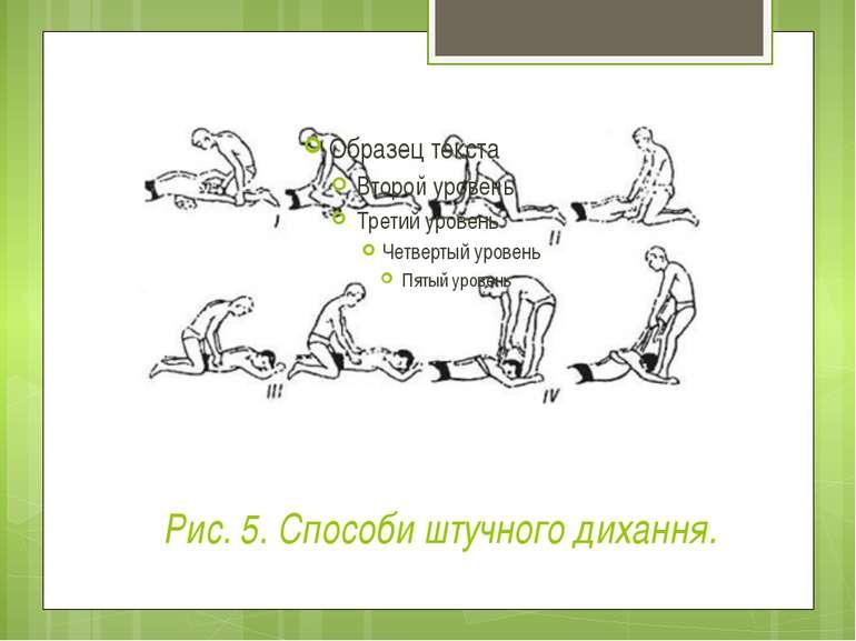 Рис. 5. Способи штучного дихання.