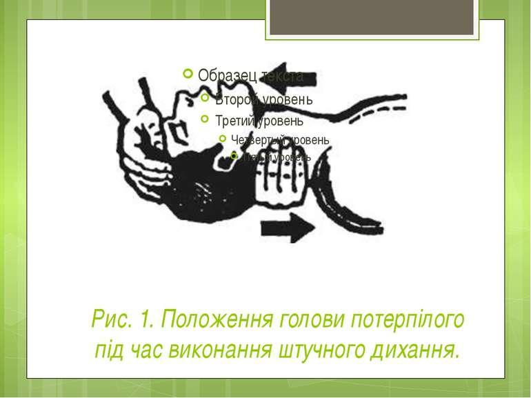 Рис. 1. Положення голови потерпілого під час виконання штучного дихання.