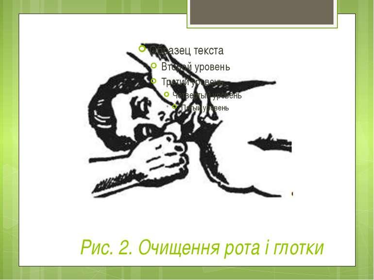 Рис. 2. Очищення рота і глотки