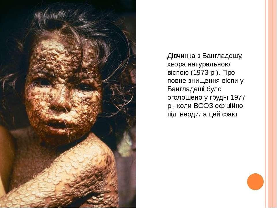 Дівчинка з Бангладешу, хвора натуральною віспою (1973 р.). Про повне знищення...