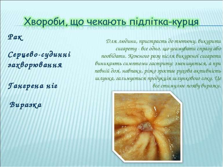 Рак Серцево-судинні захворювання Для людини, пристрасть до тютюну, викурити с...