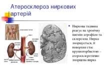 Атеросклероз ниркових артерій Ниркова тканина реагує на хронічну ішемію атроф...