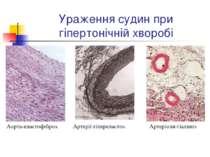 Ураження судин при гіпертонічній хворобі Аорта-еластофіброз. Артерії-гіперела...