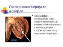 Ускладнення інфаркта міокарда Міомаляція – розплавлення зони некрозу призводи...