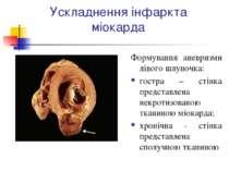 Ускладнення інфаркта міокарда Формування аневризми лівого шлуночка: гостра – ...