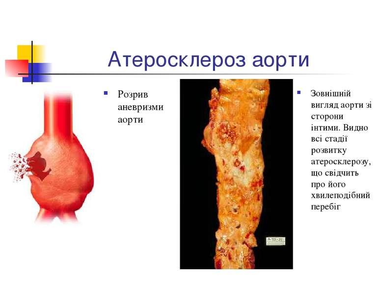 Атеросклероз аорти Розрив аневризми аорти Зовнішній вигляд аорти зі сторони і...