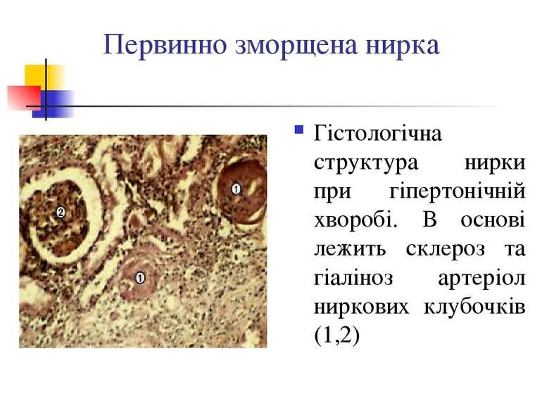 Первинно зморщена нирка Гістологічна структура нирки при гіпертонічній хвороб...