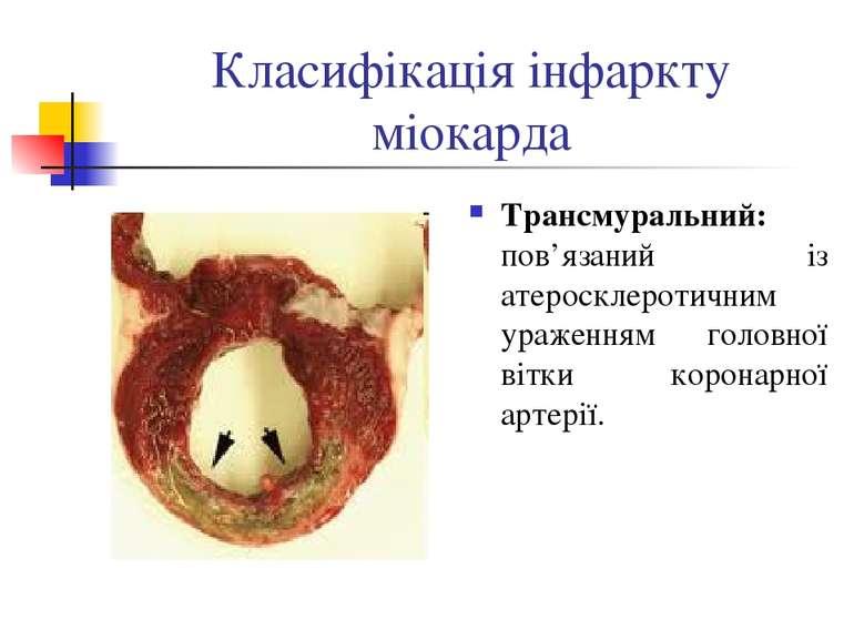 Класифікація інфаркту міокарда Трансмуральний: пов'язаний із атеросклеротични...
