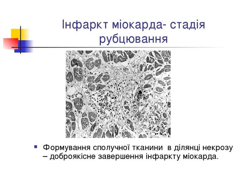 Інфаркт міокарда- стадія рубцювання Формування сполучної тканини в ділянці не...