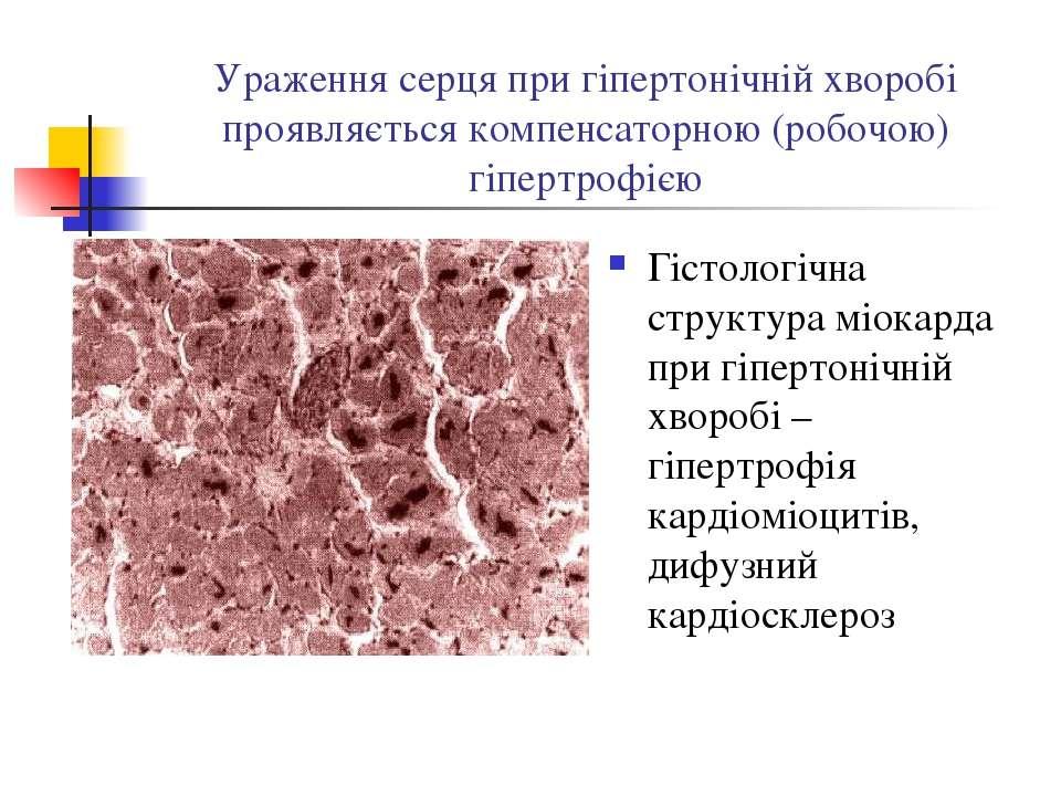Ураження серця при гіпертонічній хворобі проявляється компенсаторною (робочою...