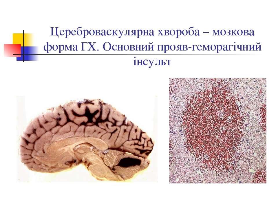 Цереброваскулярна хвороба – мозкова форма ГХ. Основний прояв-геморагічний інс...