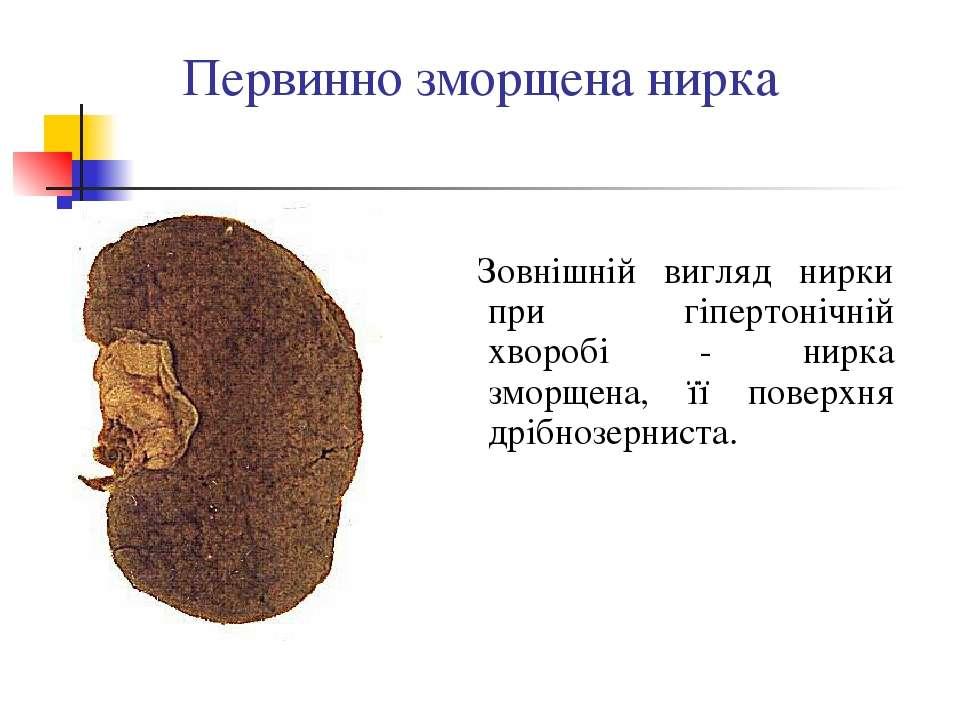 Первинно зморщена нирка Зовнішній вигляд нирки при гіпертонічній хворобі - ни...
