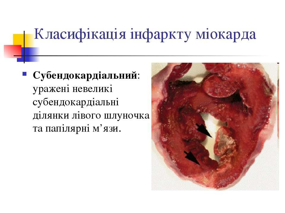 Класифікація інфаркту міокарда Субендокардіальний: уражені невеликі субендока...