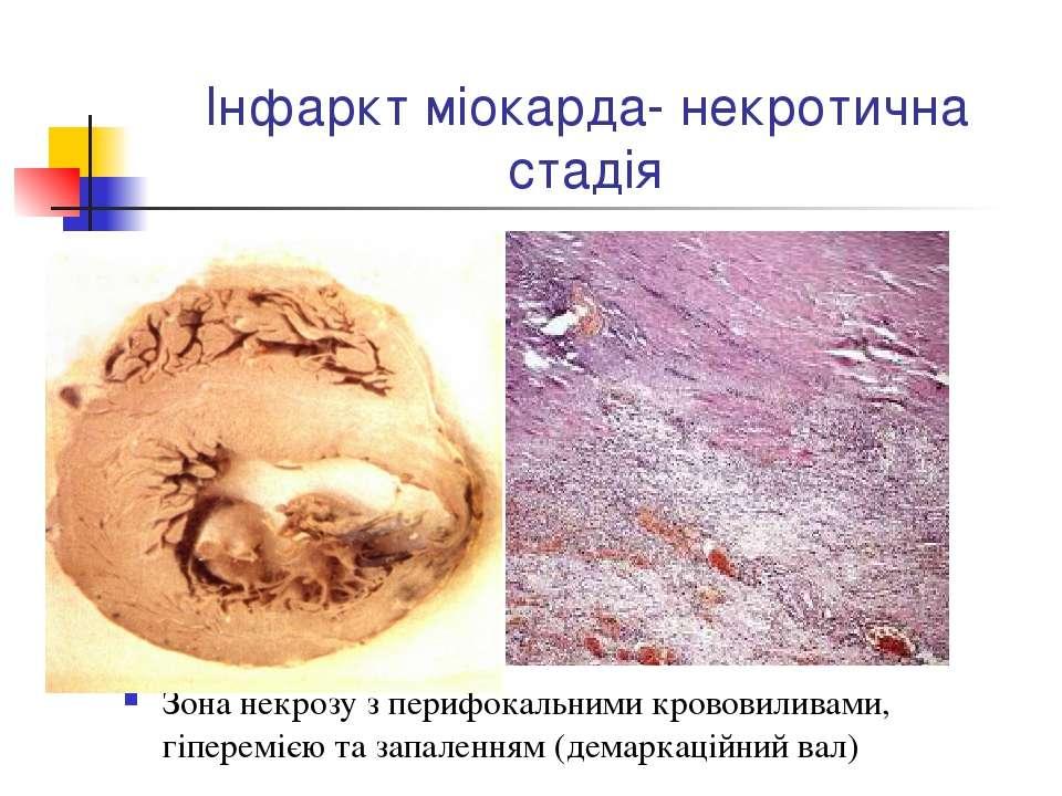 Інфаркт міокарда- некротична стадія Зона некрозу з перифокальними крововилива...