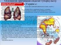 Основними причинами епідемії туберкульозу в Україні є: · соціально-економічні...