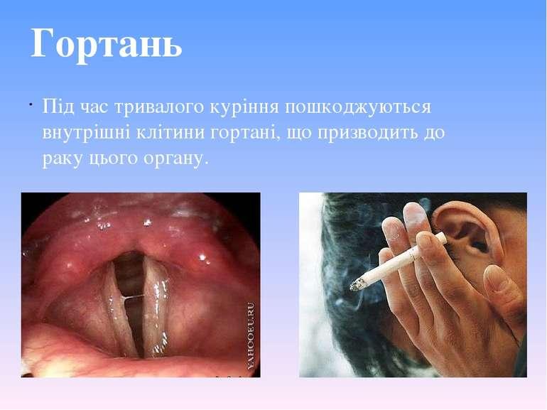 Гортань Під час тривалого куріння пошкоджуються внутрішні клітини гортані, що...
