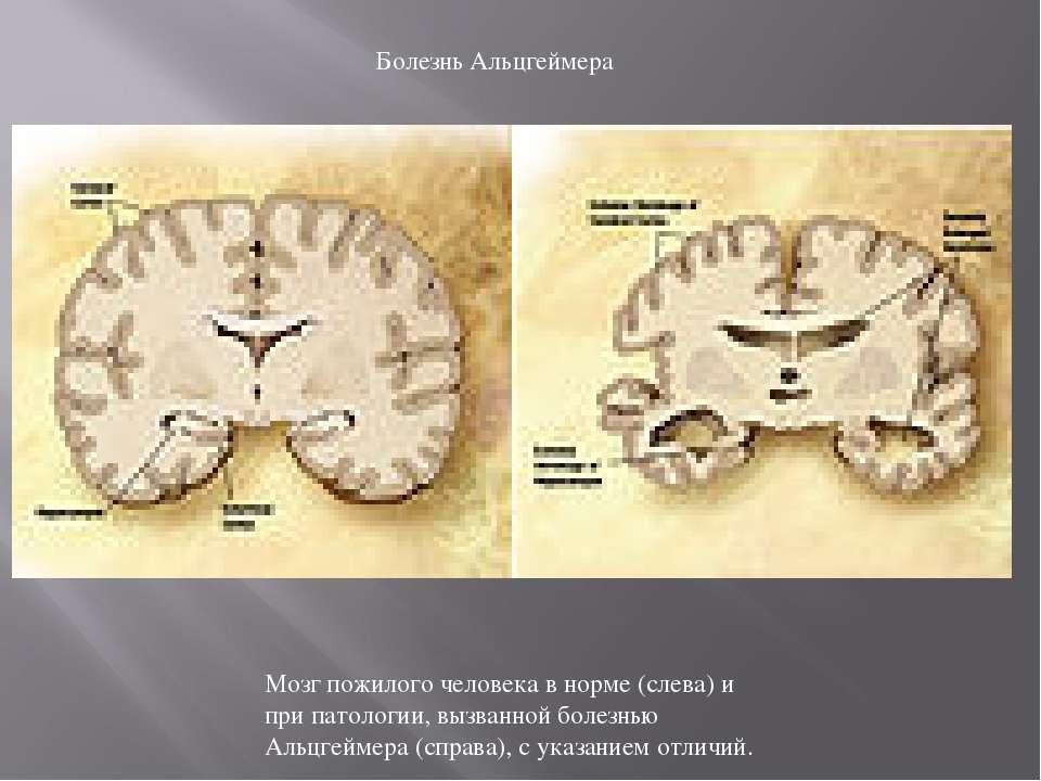 Мозг пожилого человека в норме (слева) и при патологии, вызванной болезнью Ал...