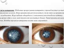 Перезріла катаракта. Подальше прогресування катаракти супроводжується розпадо...