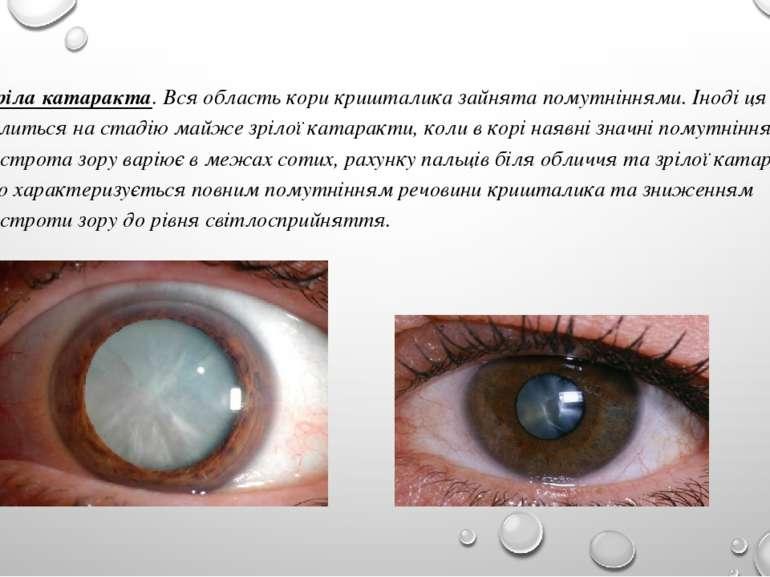 Зріла катаракта. Вся область кори кришталика зайнята помутніннями. Іноді ця с...
