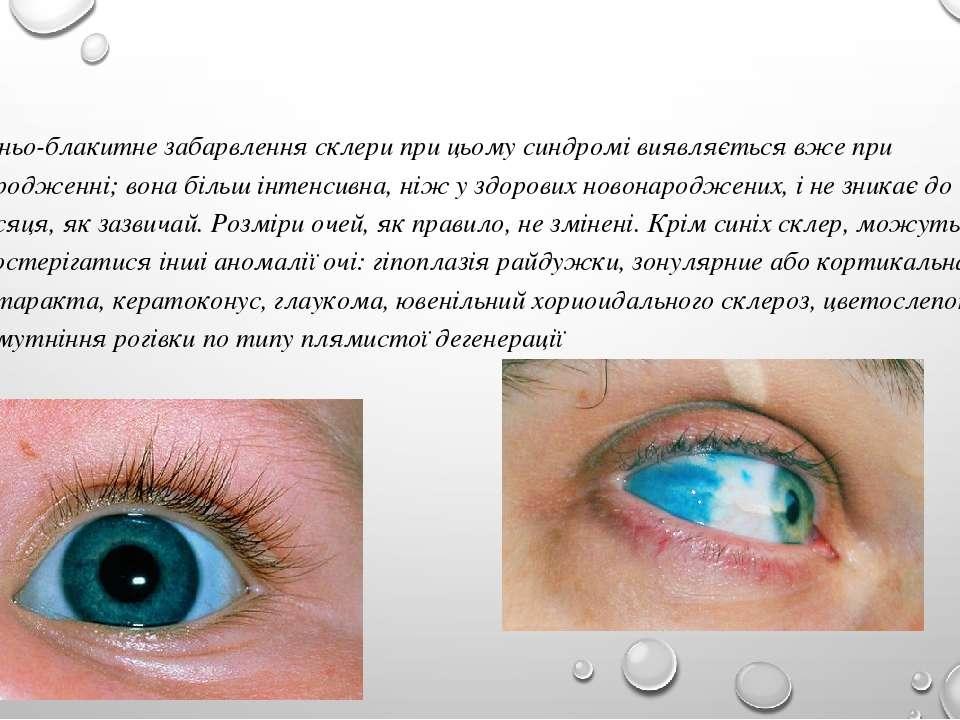 Синьо-блакитне забарвлення склери при цьому синдромі виявляється вже при наро...