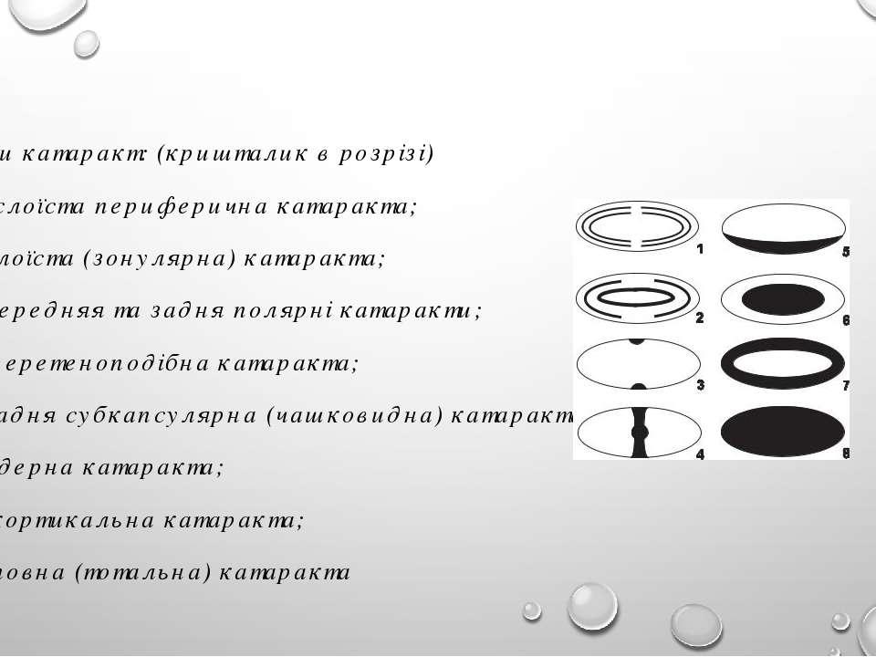 Види катаракт: (кришталик в розрізі) слоїста периферична катаракта; 2) слоїст...