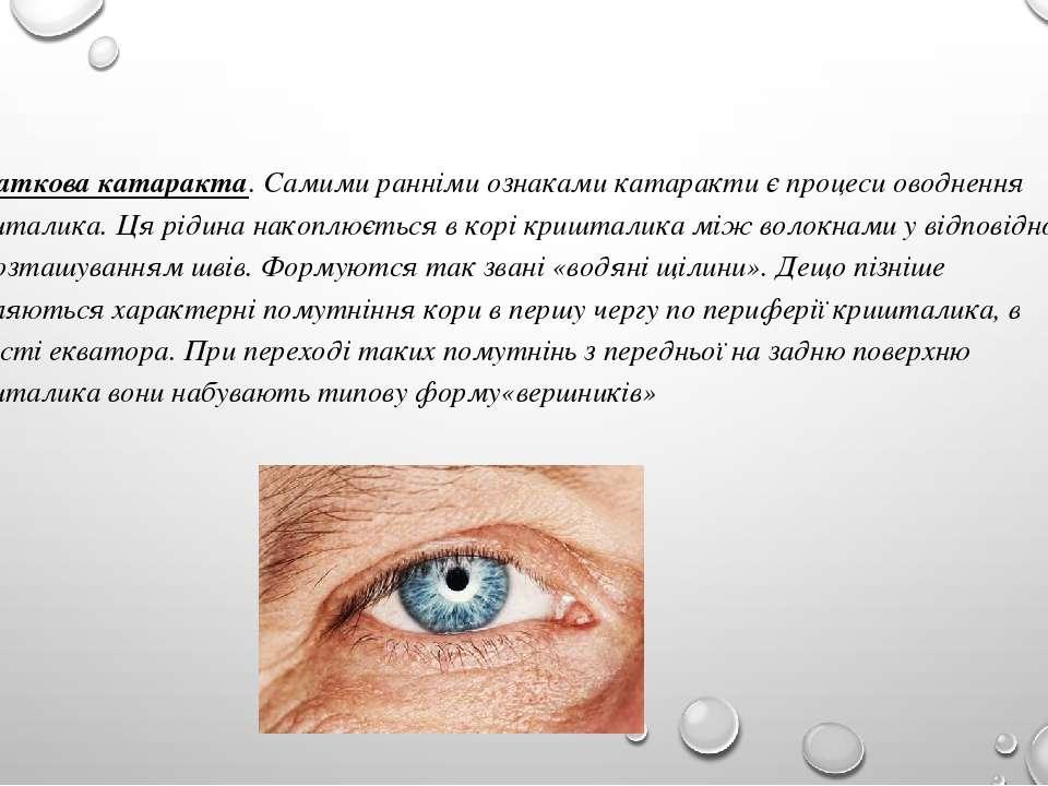 Початкова катаракта. Самими ранніми ознаками катаракти є процеси оводнення кр...