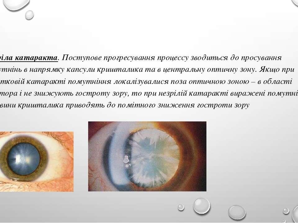 Незріла катаракта. Поступове прогресування процессу зводиться до просування п...