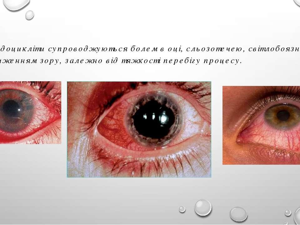Іридоцикліти супроводжуються болем в оці, сльозотечею, світлобоязню і зниженн...