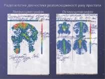 Радіоізотопна діагностика розповсюдженості раку простати Лімфосцинтіграфія Ос...