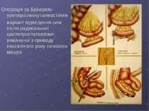 Операція за Брікером-уретероілеокутанеостомія варіант відведення сечі після р...
