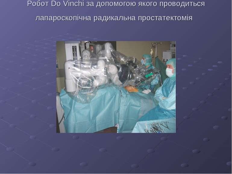 Робот Do Vinchi за допомогою якого проводиться лапароскопічна радикальна прос...