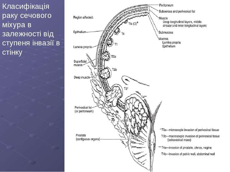 Класифікація раку сечового міхура в залежності від ступеня інвазії в стінку