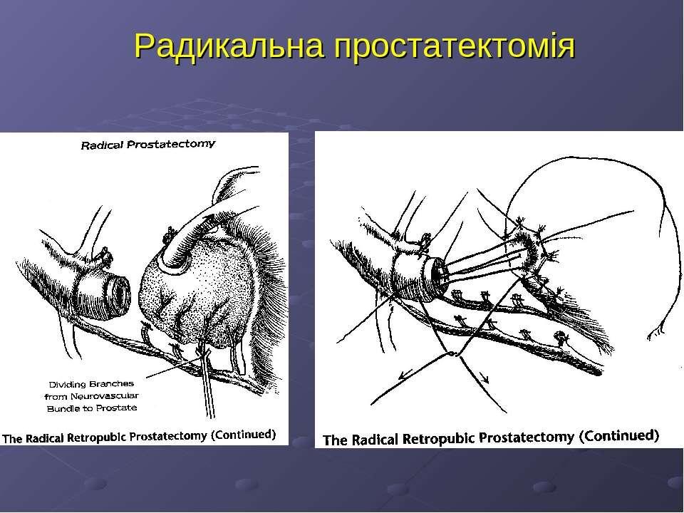 Радикальна простатектомія