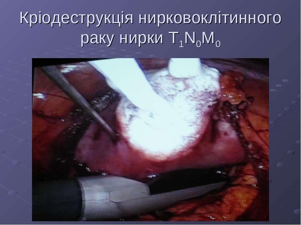 Кріодеструкція нирковоклітинного раку нирки Т1N0M0