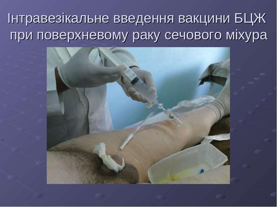Інтравезікальне введення вакцини БЦЖ при поверхневому раку сечового міхура
