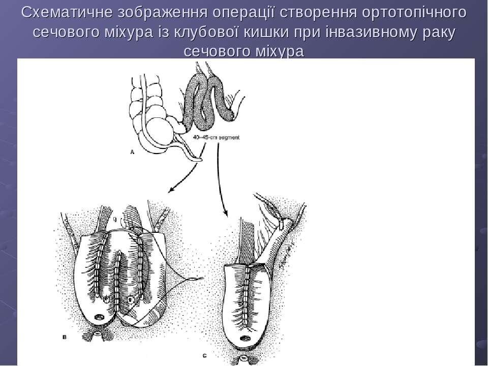 Схематичне зображення операції створення ортотопічного сечового міхура із клу...