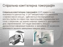 Спіральна комп'ютерна томографія Спіральна комп'ютерна томографія(СКТ) відкр...