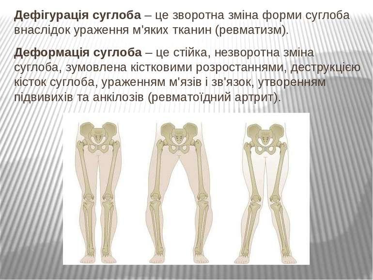 Дефігурація суглоба – це зворотна зміна форми суглоба внаслідок ураження м'як...