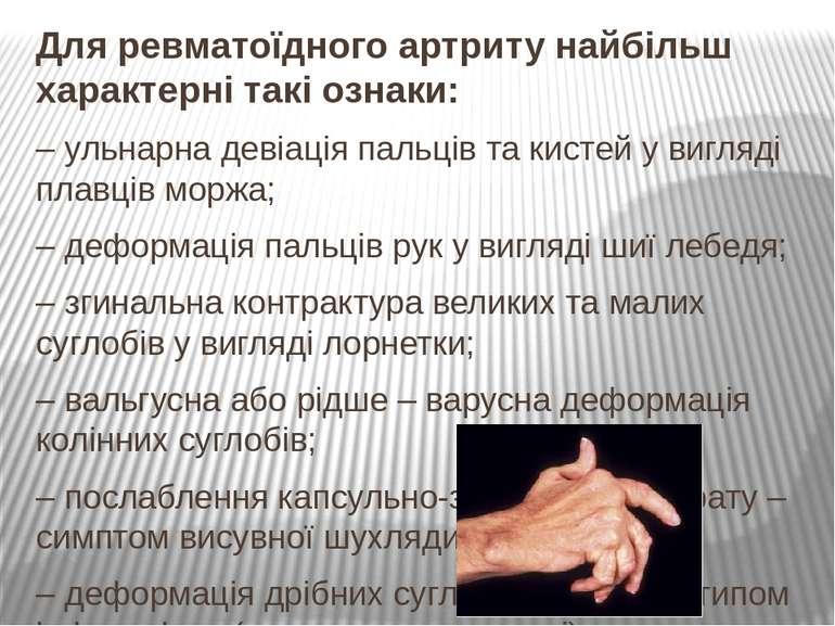 Для ревматоїдного артриту найбільш характерні такі ознаки: – ульнарна девіаці...