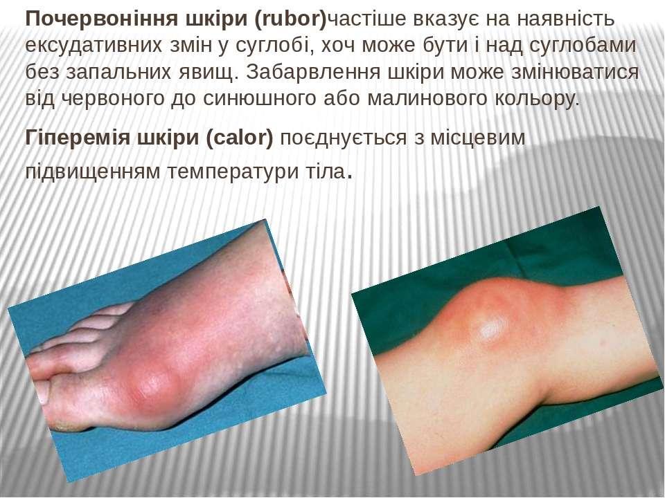 Почервоніння шкіри (rubor)частіше вказує на наявність ексудативних змін у суг...