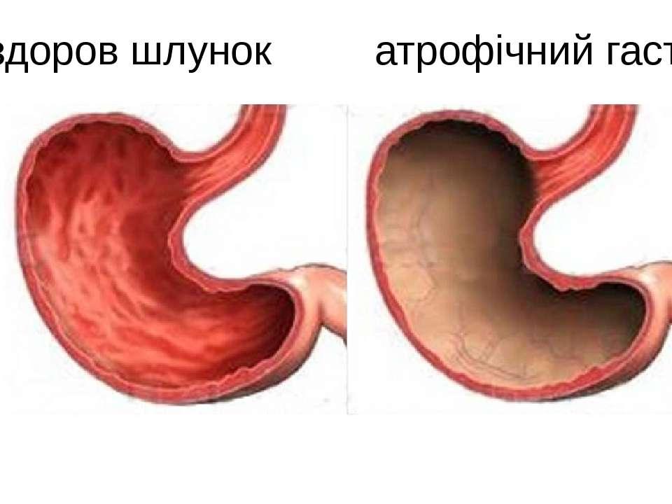 здоров шлунок атрофічний гастріт