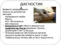 ДІАГНОСТИКА Виявити захворювання можна за допомогою методів: Проведення проби...
