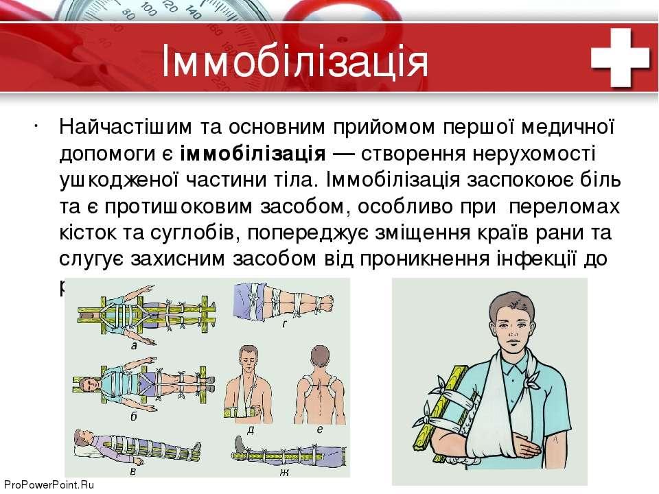 Іммобілізація Найчастішим та основним прийомом першої медичної допомоги єімм...
