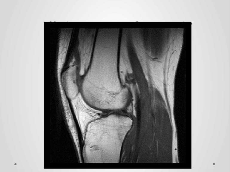Магнітно – резонансне зображення коліна