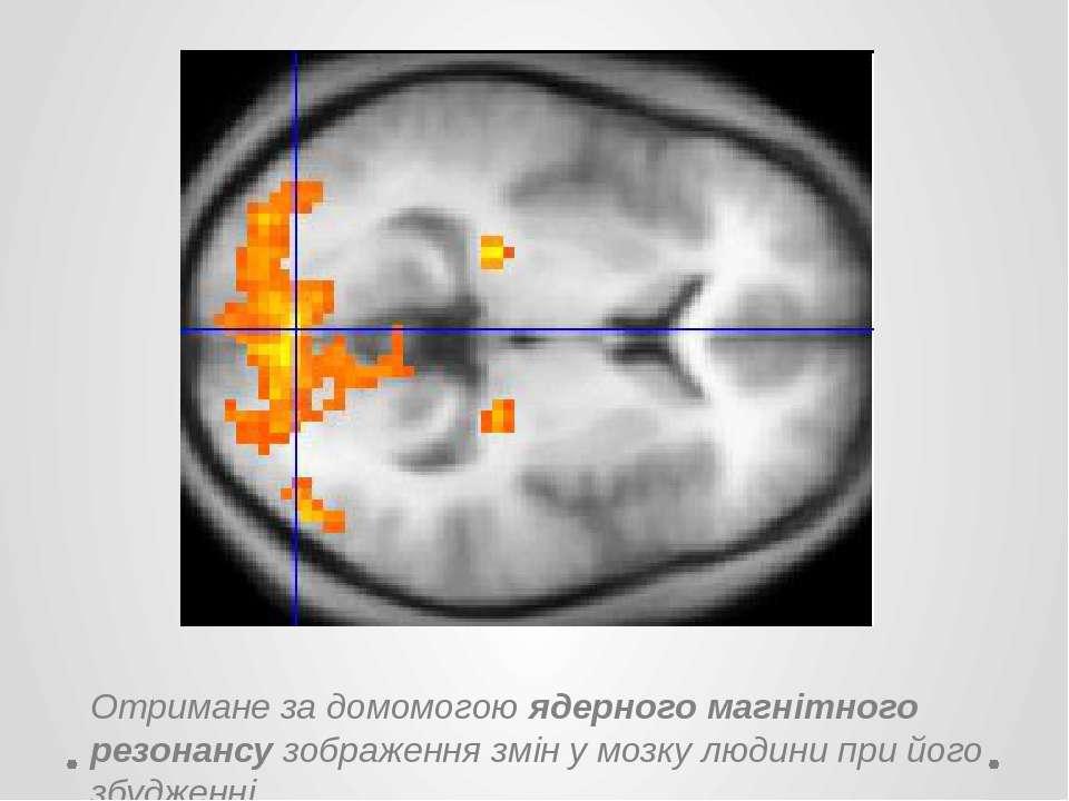 Отримане за домомогою ядерного магнітного резонансу зображення змін у мозку л...