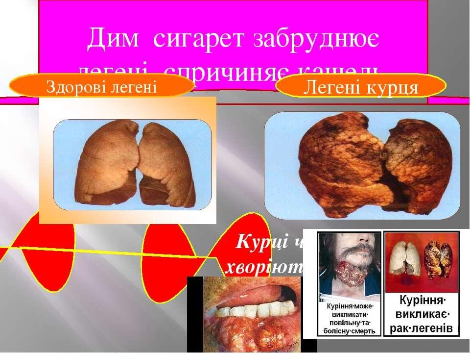 Дим сигарет забруднює легені, спричиняє кашель. Курці частіше хворіють на рак...